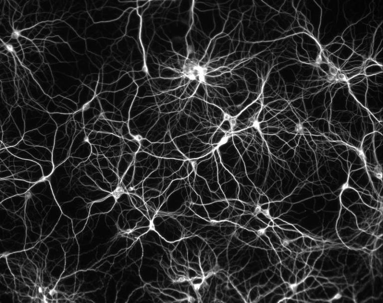 neuronnet.jpg